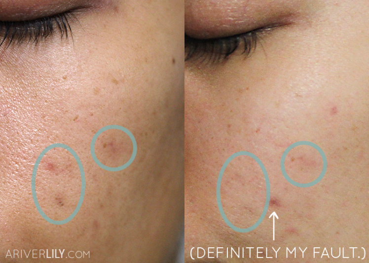 A before and after of the brightening effects of the Freshly Juiced Vitamin Drop on pigmentation (cr. ariverlily)